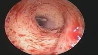 Sykepleieren brakk seg da hun så inni kvinnens øre
