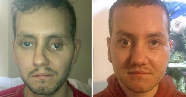 Stephen (29) fikk nytt ansikt med 3D-printer