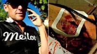 Se Lance Armstrong slenge med leppen i doping-musikkvideo