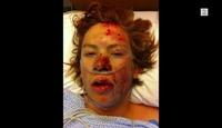 Syklisten Tommy brakk ryggen på fire steder