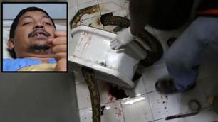 Slange bet seg fast i penis til mann som satt på do