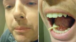 Brandon kjente noe ubehagelig under tunga – så åpnet han munnen
