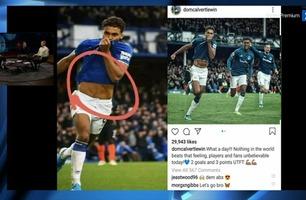 Har Everton-spissen pyntet på magemusklene?